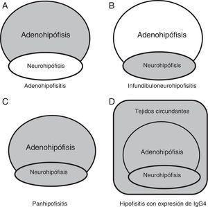 Compromiso anatómico. A) Hipófisis anterior en adenohipofisitis. B) Hipófisis posterior con/sin afectación de tallo hipofisario en infundibuloneurohipofisitis. C) Ambas regiones en panhipofisitis. D) Compromiso selar y paraselar en las hipofisitis linfoplasmocitarias con expresión de IgG4. Adaptado de Shimatsu et al.21.