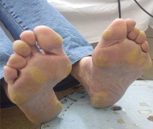 Síndrome mano-pie grado 3 en una paciente tratada con sorafenib 800mg/día.
