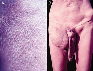 """A. Onchocerciasis. Presence of atrophy, common in patients with long course. Native Brazilian from the Yanomami tribe (personal archive: Prof. Dr. Sinésio Talhari). B. Onchocerciasis. Observe the classic aspect of the """"hanging groin"""" due to long evolution. There is also scrotum elongation (secondary to cutaneous atrophy), and there are nodules in the iliac crest and left groin – probably onchocercomas. Native Brazilian from the Yanomami tribe (personal archive: Prof. Dr. Sinésio Talhari)."""