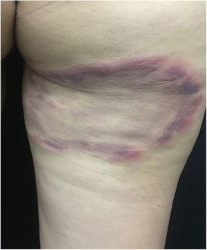 Lyme disease. Plaque presenting centrifugal growth, with erythematous-violet borders, measuring approximately 18cm, located on the posterior surface of the thigh.
