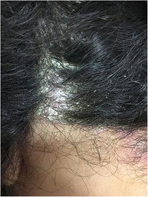 Erythematous scaly lesions on the scalp suggestive of psoriasis.