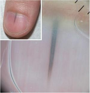 Clinic and dermoscopy (Case 2). Dermoscopy of the nail plate shows irregular bands of triangular-shaped pigmentation with a bluish-gray color and wider in the proximal and dark brown and finer portions in the distal portion.