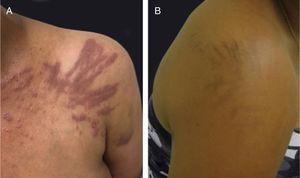 Flagellate dermatitis associated to bleomycin treatment: (A) pruritic erythematous linear streaks, (B) followed by linear pigmentation.