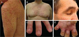 EGFR inhibitors related adverse events: (A and B) inflammatory papulopustular rash with associated xerosis (*); (C) trychomegaly and hypertrichosis; (D) periungual fissures and (E) pyogenic granuloma-like lesions. (A, B, D and E on cetuximab treated patients; C on panitumumab treated patient).