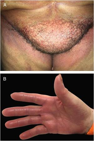 Toxic erythema of chemotherapy (TEC): combination of different lesions caused by direct toxicity of chemotherapy agents with (A) lesions on flexural areas (intertriginous eruption associated with chemotherapy) and (B) on palms and soles (Hand-foot syndrome – HFS).