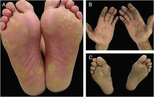 Hand-foot skin reaction (HFSR) associated with antiangiogenic agents (VEGFRi): (A) hyperkeratotic lesions (sorafenib) and (B) bullous lesions (axitinib) on areas of pressure and friction.