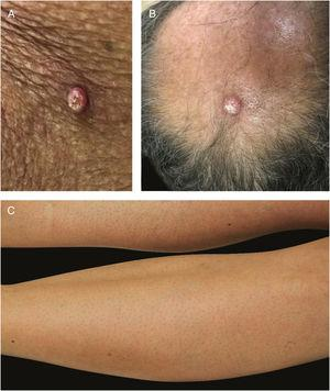 BRAF inhibitor related adverse events: multiple keratoachantomas (A) and low grade squamous cell carcinomas (B) after withdrawal of MEK inhibitor and maintenance of BRAF inhibitor; (C) associated keratosis pilaris-like eruption on the lower limbs.