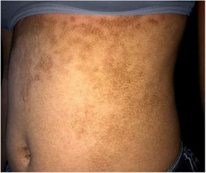 Hyperkeratotic brownish plaques with a dotted pattern affecting the abdomen.