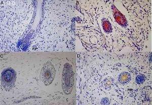 Cytokeratin's immunostaining in human hair follicle development. (A) CK1 immunoexpression at 19 weeks fetus. (B) CK14 immunoexpression at 12 weeks fetus. (C) CK20 immunoexpression at 21 weeks fetus. (D) CK16 immunoexpression at 12 weeks fetus.