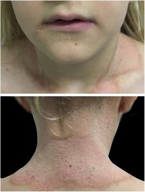 Erythematous, hyperkeratotic plaque, with prominent and geographical border in the cervical region. Yellowish keratotic plaques at the angle of the mouth and chin.