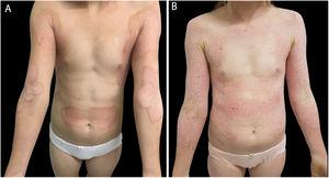 (A) Erythematous, keratotic plaques with prominent and geographical borders on the arms, forearms, cervical, armpits, lateral region of the trunk, and umbilical and supra-umbilical regions. (B) The same patient a month later, presenting erythematous and hyperkeratotic plaques along the entire arm, forearm, and anterior chest, sparing the umbilical and supra-umbilical regions.