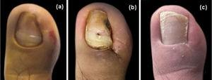 Cosmetic result. (A), Preoperative image. (B), After stitch removal on the 14thday. (C), Follow-up after one year.