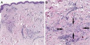 (A) A skin section showing the foci of chronic interstitial reticular dermis inflammation (Hematoxylin & eosin, ×20). (B) At a higher magnification, a clear necrobiosis of collagen fibers is observed (black arrows), along with an associated lymphohistiocytic infiltrate (Hematoxylin & eosin, ×40).