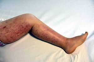 Macroscopic appearance of lesions on legs.