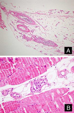 Tumor cells in the lumens of vessel in the subcutaneous adipous tissue (A: Hematoxylin & eosin, ×100) and muscular tissue (B: Hematoxylin & eosin, ×400).