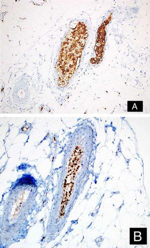 Tumor cells positive with CD20 (A: DAB, ×200), and MUM-1 (B: DAB, ×200).
