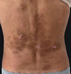 Multiple brownish macules in areas previously occupied by psoriatic plaques.