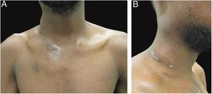 Clinical aspect of the patient. (A−B) dermatosis located on the right side of the cervical and upper thoracic regions characterized by cold and painless abscesses up to 5cm in diameter, some with fistulization and ulcers.