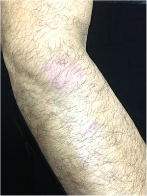 Clinical aspect of the lesions 30 days after treatment.