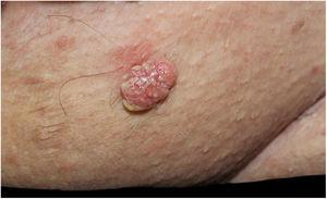 Erythematous verrucous plaque with yellowish structures in the pubic region.