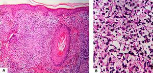 (A), Dermal granulomatous inflammatory process with epithelioid cells, giant cells and lymphocytes (Hematoxylin & eosin, ×100). (B), Dermal inflammatory process with foamy histiocytes (Hematoxylin & eosin, ×400).