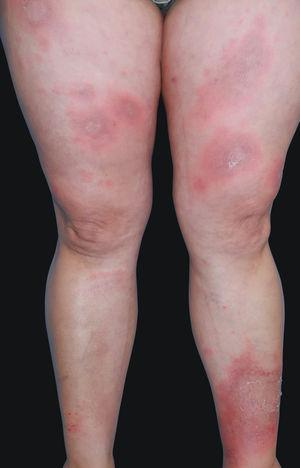 Annular erythematous plaques with trailing scale located at thighs and legs.