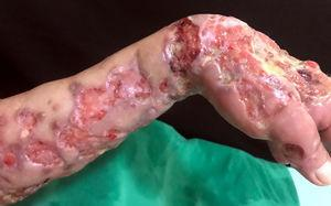 Detail of multiple ulcers with raised and infiltrated edges.