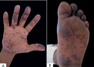 A and B- Disseminated ecchymotic purpura in a male patient with meningoccocemia