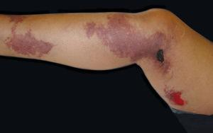 Purpuric plaques with necrosis in patient with calciphylaxis