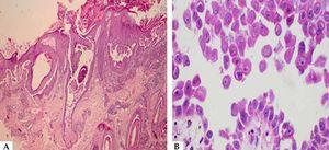 A - Histopathological examination, showing a blister with suprabasal cleavage level affecting the epidermis and follicular epithelium (Hematoxylin & eosin, x40); B - In detail, acantholytic keratinocytes in the blister content (Hematoxylin & eosin, x400)