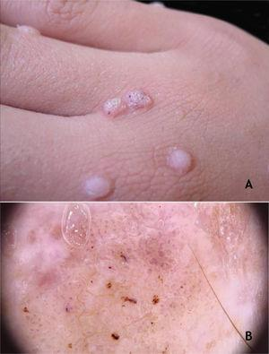 (A), Common wart, papules with keratotic surface, some with dark spots. (B), common wart at dermoscopy, vessels surrounded by a white halo and hemorrhagic dots. Source: Dermatology Service of HC-UFMG/EBSERH.