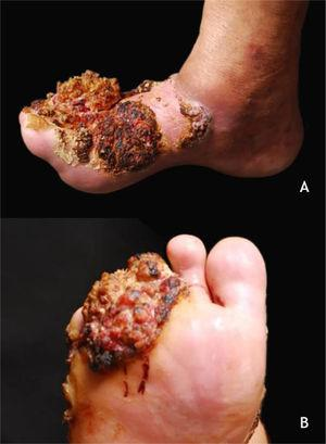 (A and B) Verrucous carcinoma, large tumor in the forefoot, multilobulated, with verrucous areas, reaching the dorsum of the foot (A) and sole (B). Source: Dermatology Service of HC-UFMG/EBSERH.
