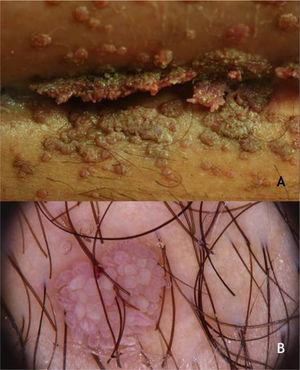 (A), Condyloma acuminatum, papules and plaques, vegetating, skin-colored, pinkish and brownish, located in the suprapubic fold. (B), Condyloma acuminatum at dermoscopy, vessels surrounded by a white halo in digitiform projections. Source: Dermatology Service of HC-UFMG/EBSERH.