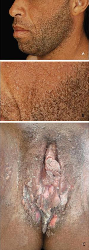 (A and B) Flat warts in a transplanted patient. (C), Condyloma acuminatum in an HIV-positive pregnant woman, showing multiple papules and condylomatous plaques, some eroded (secondary to the use of topical medication) affecting a large area. Source: HC-UFMG/EBSERH.
