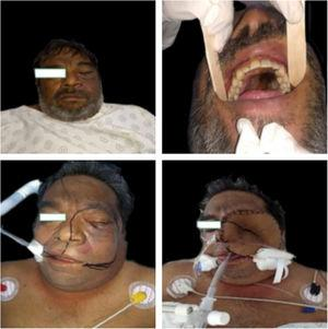 Clinical picture of a patient before and after extensive surgery.