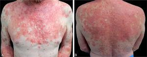 (A and B) Erythematous papules and plaques with well-demarcated areas of spared skin on anterior thorax and back.