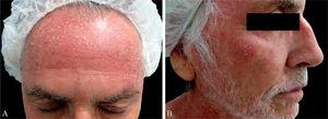 (A and B) Erythematous papules and plaques with superficial scaling on the face.