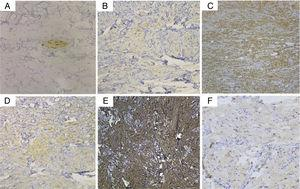 Photomicrographs of immunohistochemical studies. (A) S-100 was negative in the tumor cells, while the nerve fiber tract served as an internal positive control (Original magnification, ×200). (B) CD68, (C) vimentin, (D) Syn, and (E) NKI/C3 (CD63) were positive (Original magnification, ×100), and (F) NSE was weakly positive (Original magnification, ×200).