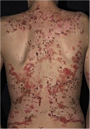 Fogo selvagem or endemic pemphigus foliaceus. Extensive exulcerations with hematic crusts on the back in a young resident of the Tietê river valley.