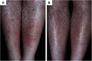 (A), Erythema chronicum migrans as the early manifestation of borreliosis-like illness. (B), Remission of clinical picture after treatment with doxycycline (Kindly provided by Prof. Sinésio Talhari).
