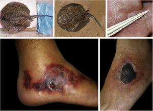 Freshwater stingrays (Potamotrygon sp.) associated with severe accidents with bathers and fishermen at the Paraná River basin. Detail of the serrated stinger. Skin lesions due to stingray accidents: lower-limb ulcers on an extensive livedoid base (< 72h) that develops into necrosis and eschar (> 7 days).