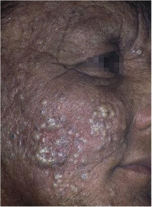 Chloracne. Farmer from the Tietê river valley with extensive papulopustular eruption with comedones. He reports unprotected handling of pesticides containing hexachlorobenzene (banned from use in Brazil in the 1980s). Three other family members were affected.