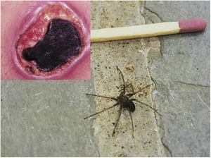 Skin ulcer with necrotic eschar formation derived from an accident caused by a spider of the genus Loxosceles (>96h). Example of an adult brown spider (Loxosceles sp.).