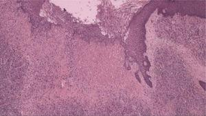 Histopathology demonstrating fibroplasia, newly formed vessels associated with an inflammatory infiltrate containing lymphocytes and neutrophils (Hematoxylin & eosin, ×40).