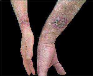 Sporotrichosis, cutaneous form of multiple inoculation in both forearms presented by case 16.