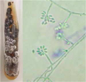 """Phenotypic aspects of Sporothrix sp. Macromorphology on Mycosel agar medium at 25°C with white to beige and black bicolor filamentous colony, and potato agar micromorphology (cotton blue, ×400) showing hyaline septate hyphae with conidiophores, with hyaline conidia at the extremities in a """"daisy"""" arrangement."""