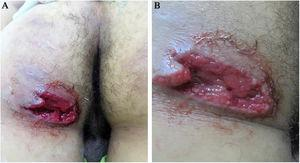 (A and B). Deep ulcer with irregular, well-defined borders, piercing, mild perilesional erythema, clean fundus, granular, without exudation on the left gluteus.