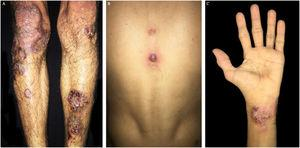(A and C). Erythematosus nodules ulcers with violet brownish, well-defined, slightly raised borders, cribriform in the middle on legs and hands. (B) Violet papule with central vesiculation on the back dorsum.