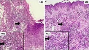 (A) Ulcer with abundant neutrophilic infiltrate on the papillary and reticular dermis. Box: detail of cellular component (arrow). (B) Dense perivascular inflammatory infiltrate of neutrophils. Box: detail of cellular component (arrow).