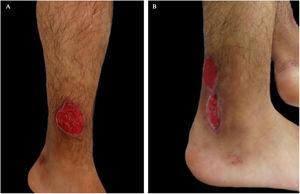 (A and B). Superficial ulcers, round in shape, well-defined, raised and slightly violet borders on both legs.